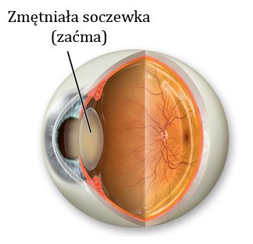 Ciekawostki ze świata optyki